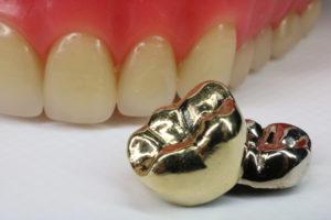 遺品の金歯